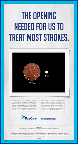 The opening needed for us to treat most strokes print ad
